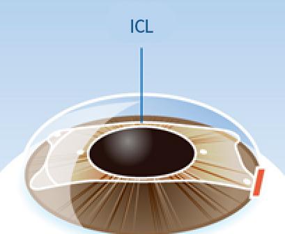 ICL 렌즈를 삽입