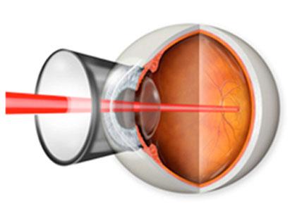 범망막광응고술